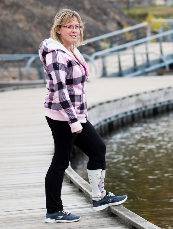 sudbury prosthetic and orthotic design case study : Candice